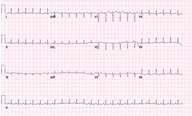 Figure 1: Case 1: Electrocardiogram showed sinus tachycardia and T-wave abnormalities.