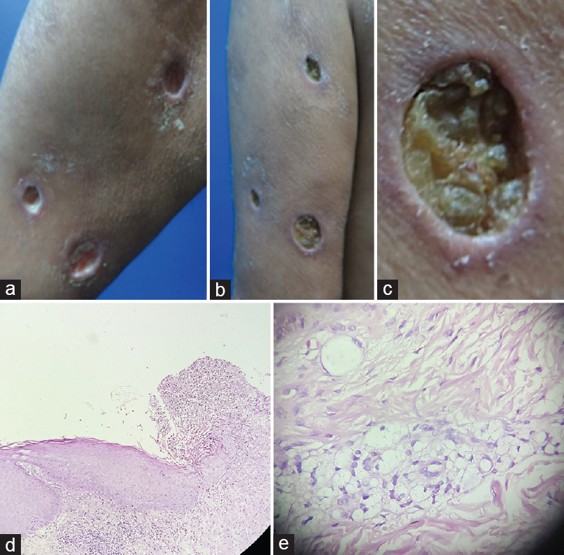 Figure 1: (a-c) Punch-out ulcers. The pathologic features are (d)epidermal invagination, dermal edema, massive infiltration of neutrophils and (e) foamy macrophages (H and E, ×200)