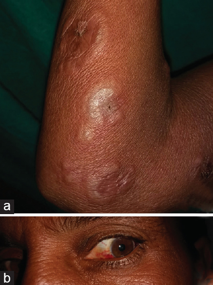 Figure 5: (a) Annular bulla over infiltrated plaque of leprosy. (b) Iritis in the same patient