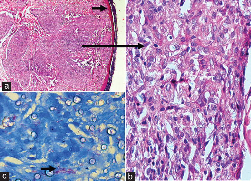 Figure 2: Hematoxylin and eosin staining showing a narrow grenz zone with nodular aggregates of foamy histiocytes (×20) (a). Collection of epithelioid cells and foamy histiocytes (×40) (b). Ziehl–Neelsen stain showing stacks of slender acid-fast bacilli within these epithelioid cells (oil immersion) (c)