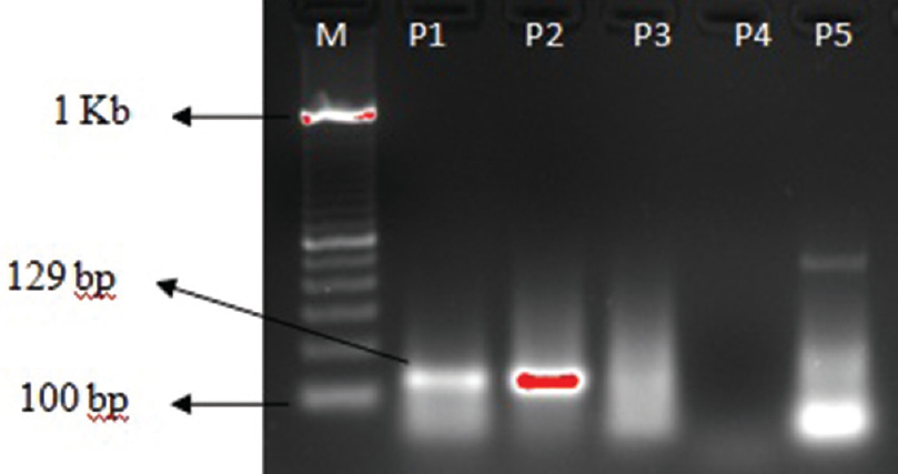 Figure 4: Amplification of 129 base pair RLEP sequence of <i>Mycobacterium leprae</i>. M denotes the 1 Kb molecular marker and <i>P</i> stand for patient samples